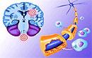 Пищевая инфекция провоцирует рассеянный склероз