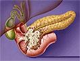 Новый метод позволит эффективнее бороться с раком поджелудочной железы