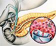 Редкое генетическое заболевание раскрыло ещё один механизм возникновения диабета