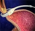 Операции по уменьшению желудка