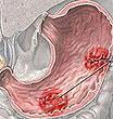 Язва желудка может вызвать страшную болезнь мозга