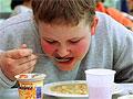 Ожирение увеличивает риск желчнокаменной болезни