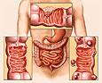 Израильское открытие поможет в лечении рака толстой кишки