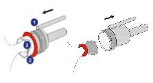 Лигирование (перевязка) латексными кольцами